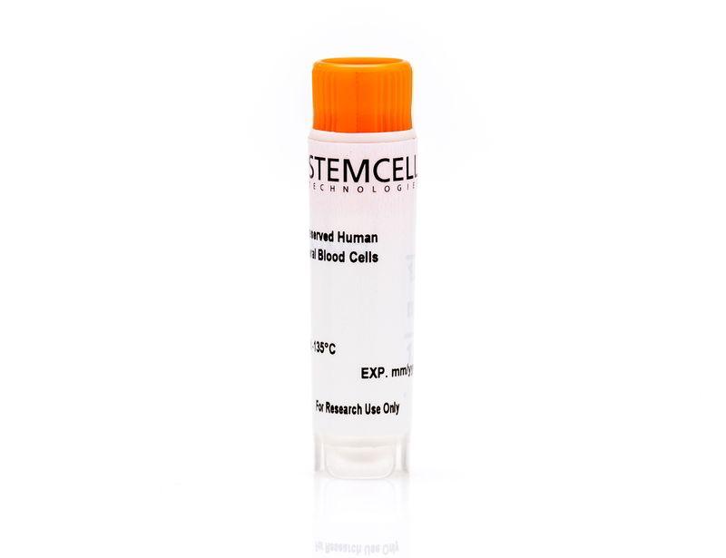 Human Peripheral Blood CD19+CD27- Naïve B Cells, Frozen